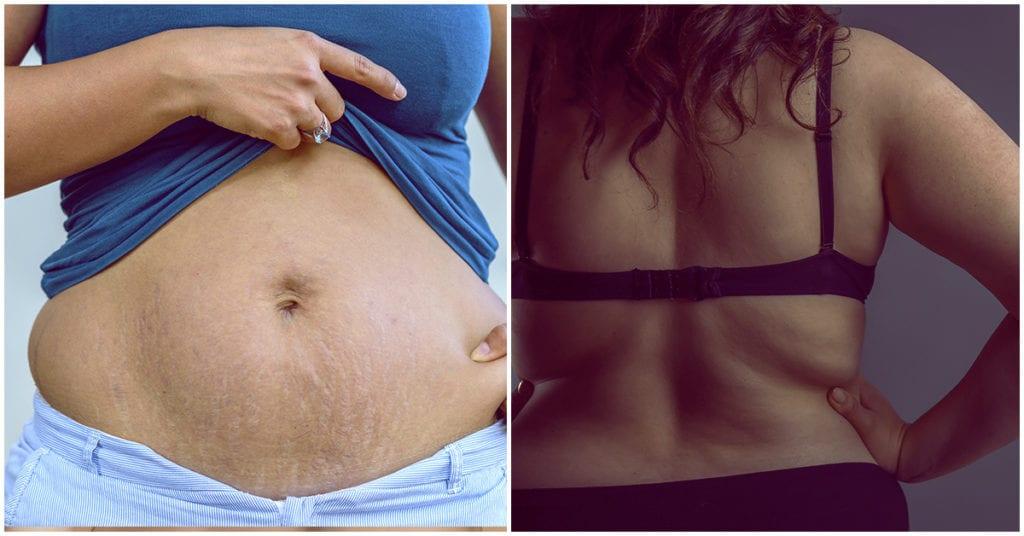 Qué pasa con la piel que sobra cuando bajas de peso