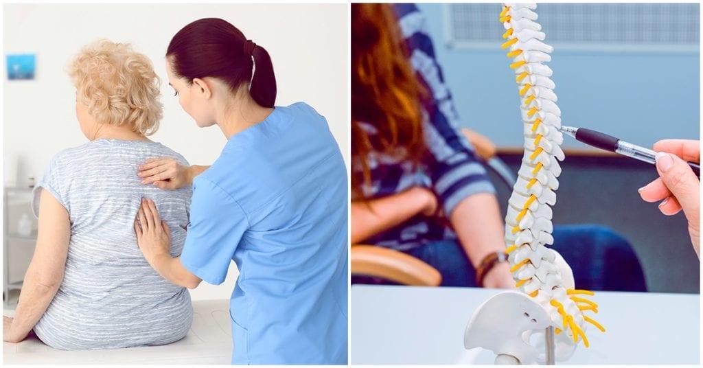 La osteoporosis, ¿se puede prevenir?