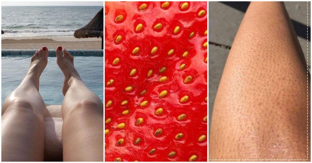 Cómo deshacerte de la piel de fresa en tus piernas
