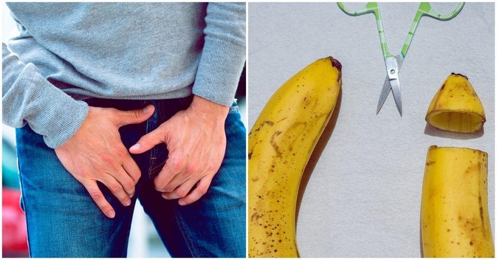 La circuncisión disminuye el riesgo de contraer ETS