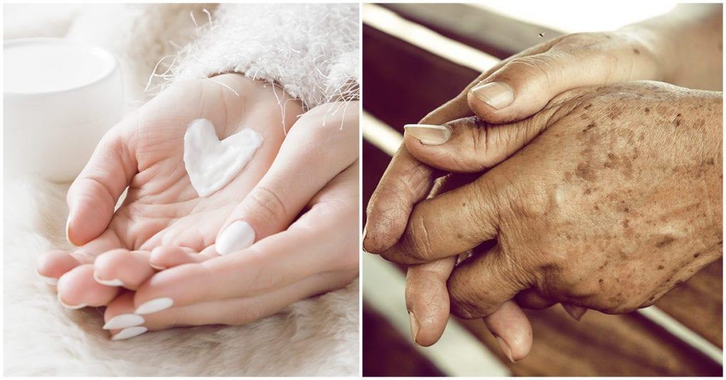 Manchitas en las manos como prevenirlas y evitarlas