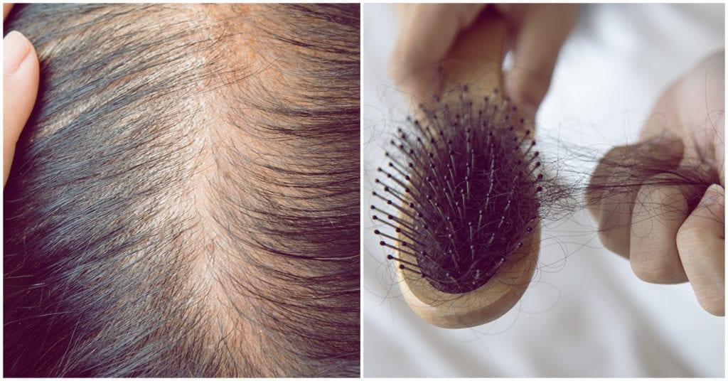 La verdadera razón de porque se te cae el cabello