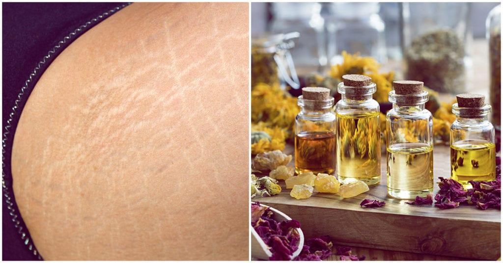Aceites esenciales anti estrías ¡Y huelen delicioso!