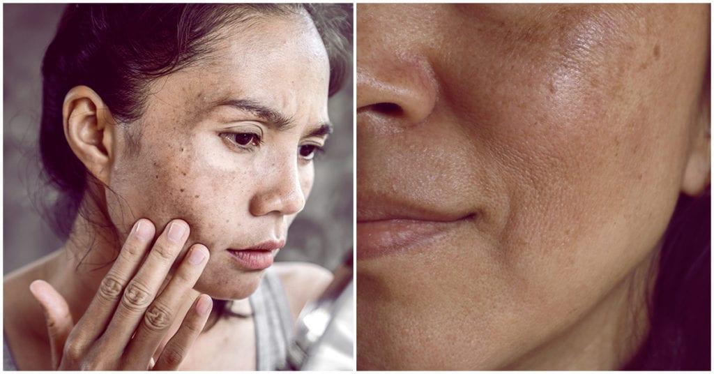 Hábitos que pueden producir manchas en tu piel