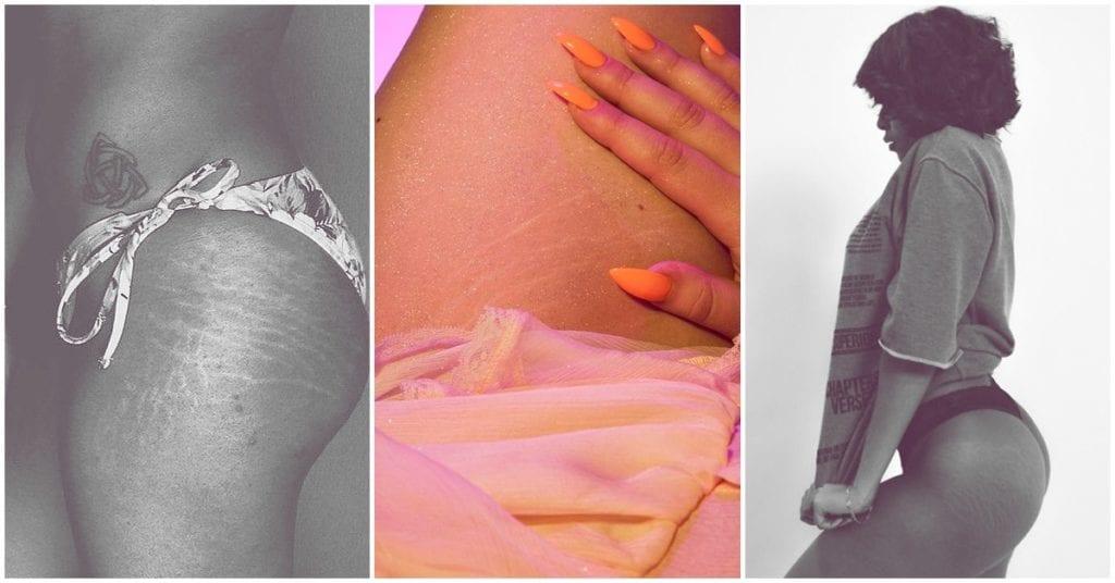 Estrías: cómo cuidar tu piel si subes y bajas de peso