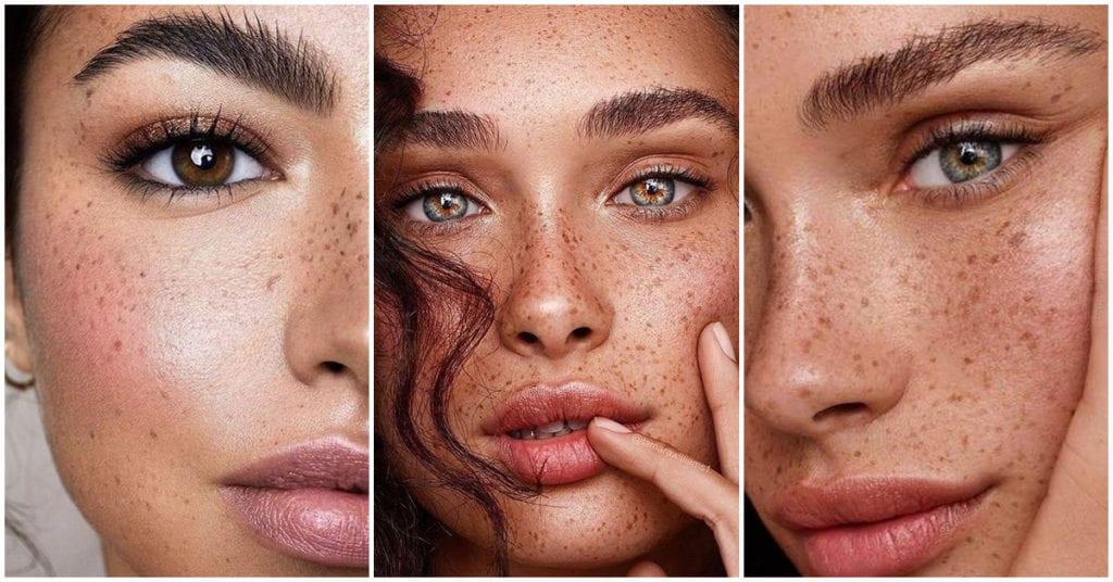 4 cuidados de piel que deben tener las chicas pecosas