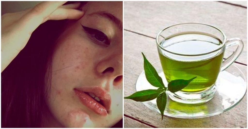Té verde para combatir el acné, ¿funciona?