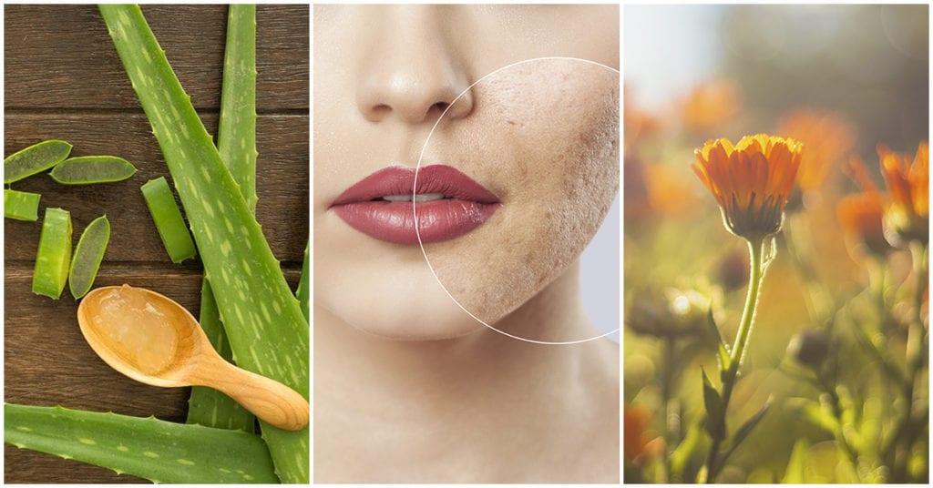 Ingredientes naturales que ayudan a cicatrizar tu piel más rápido