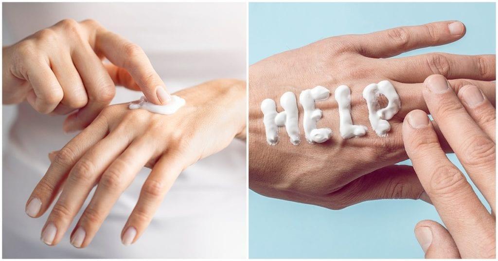 Cómo combatir la resequedad de tus manos