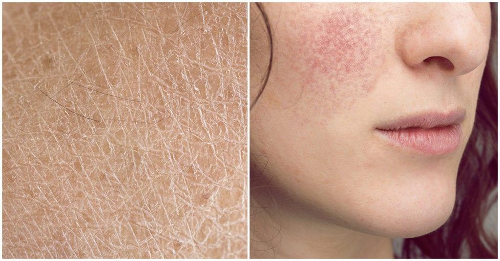 5 ingredientes que son enemigos de la piel seca