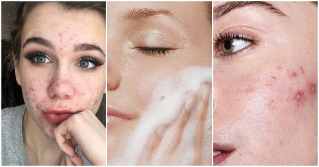 Estas señales indican que tu piel necesita un detox