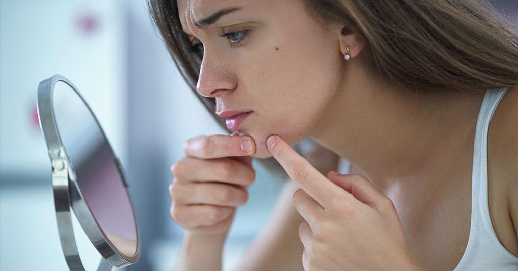 Pimprose oil para tratar el acné, sí o no