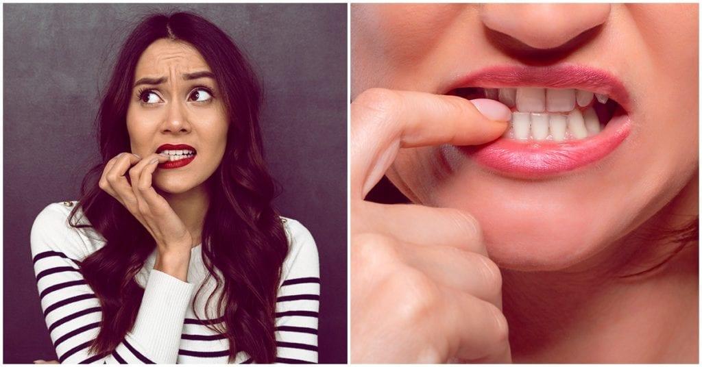 Terribles cosas que pueden pasarte si te sigues mordiendo las uñas