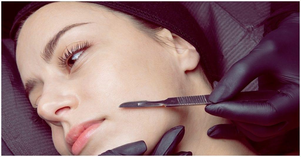Dermaplaning, todo lo que debes saber sobre este tratamiento facial