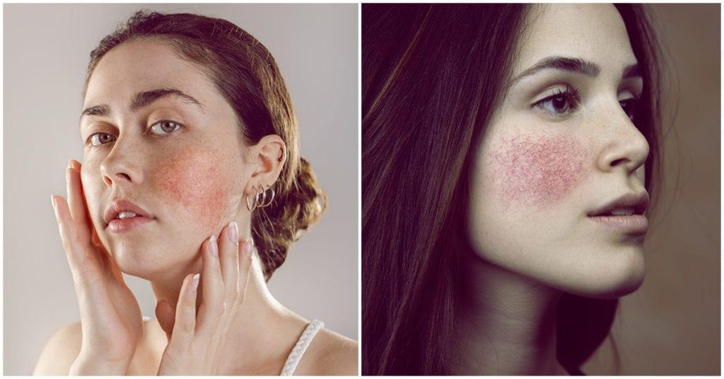 4 Señales de que tu piel sufre rosácea