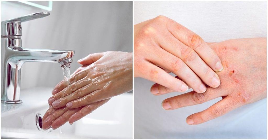 Dermatitis de contacto, ¿qué es, se puede prevenir?
