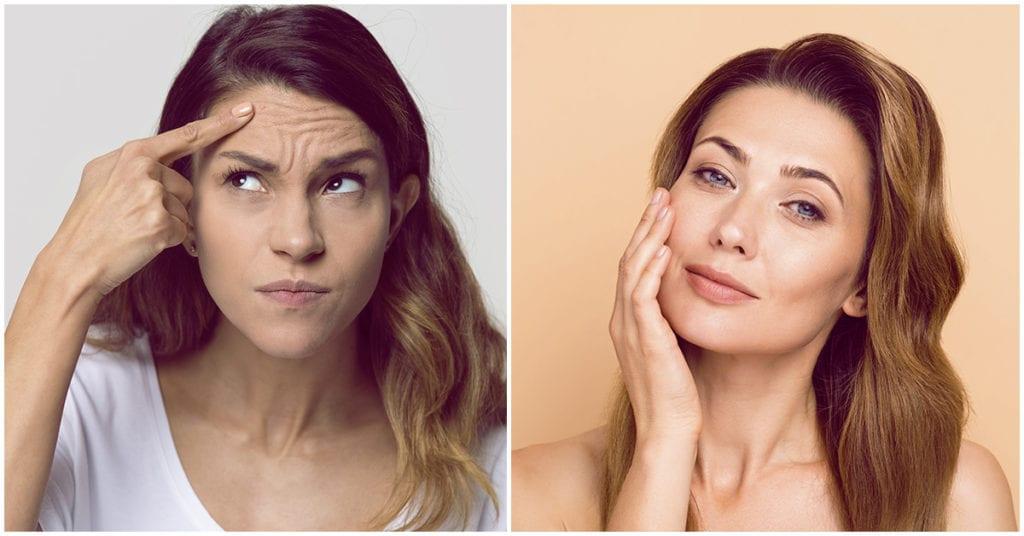 4 arrugas que pueden delatar tu edad ¡cuidado!
