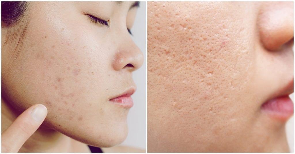 Los dermatólogos aseguran que ésta es la forma más efectiva de deshacerte de las cicatrices