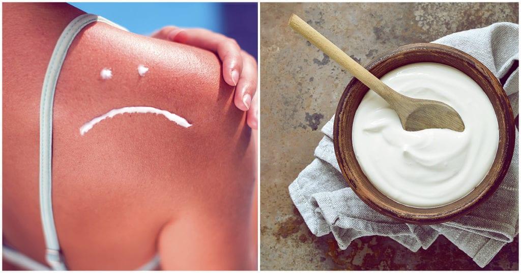 Cierto o falso ¿el yogurt ayuda a curar las quemaduras del sol?