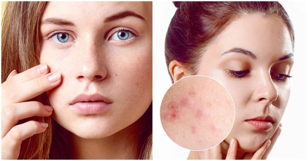 Consejitos de makeup cuando tu piel sufre de acné