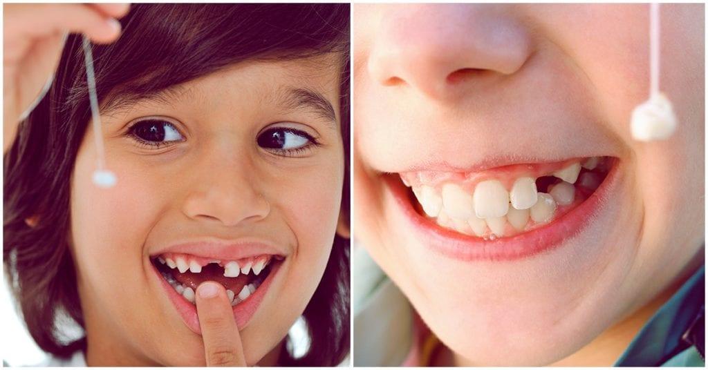 La importancia de guardar los dientes de leche de tus hijos