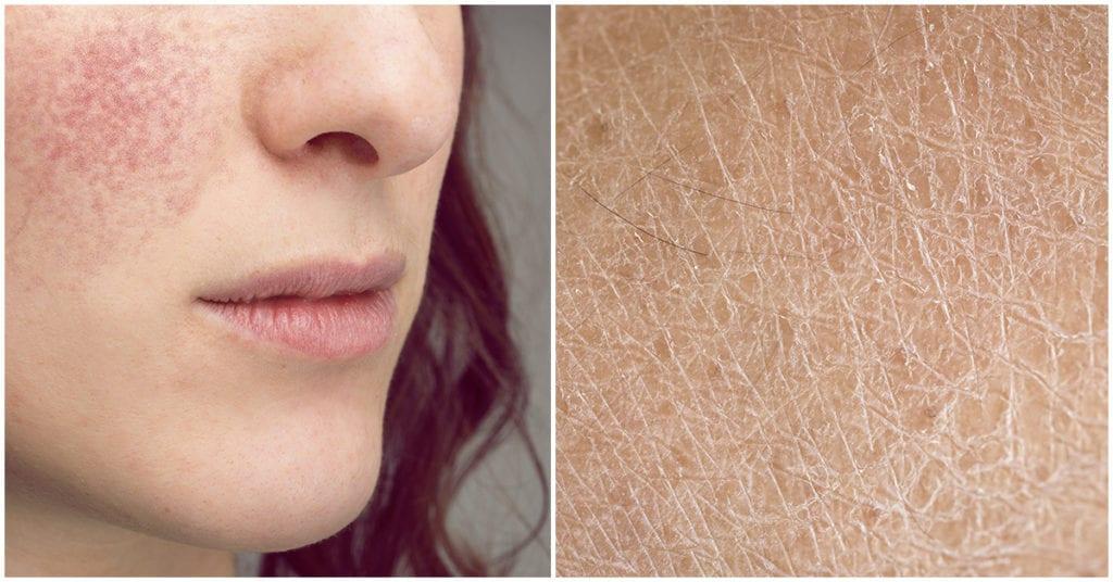 La diferencia entre tener la piel seca y deshidratada