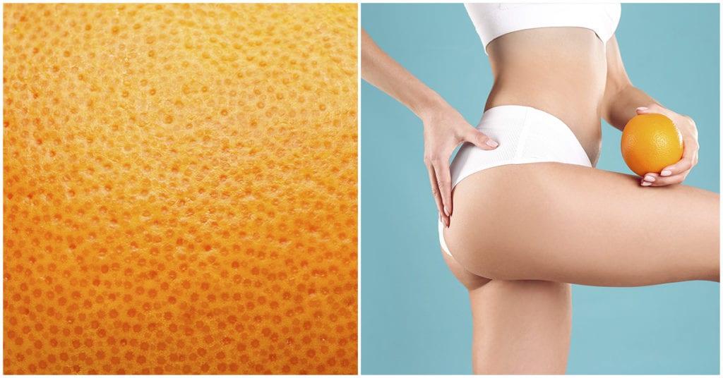 Mascarillas para reducir la piel de naranja y relajar tus piernas