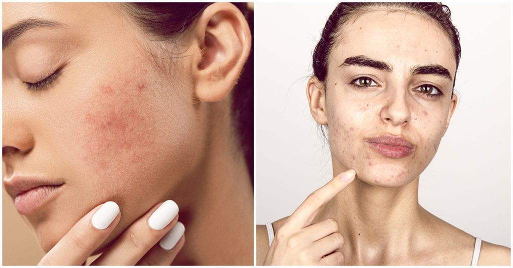 Cómo deshacerte del molesto brillo extra en tu piel