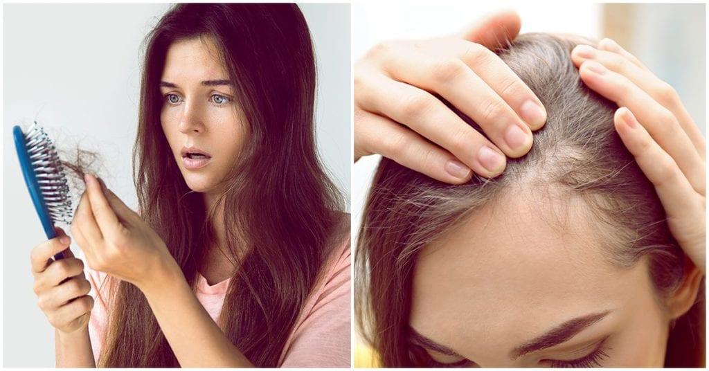 Ésta es la razón por la que nosotras perdemos más cabello que ellos