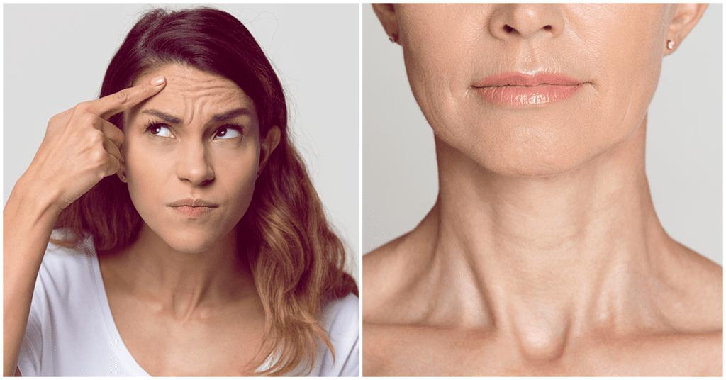 Arrugas: un tema que debe importarte desde tus 20's