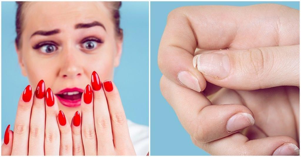 ¿Se te rompen seguido las uñas? Estos tips te ayudarán a fortalecerlas