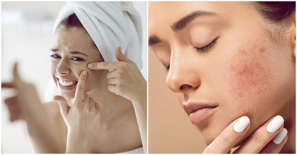 Hábitos que están empeorando tu acné ¡No lo hagas!