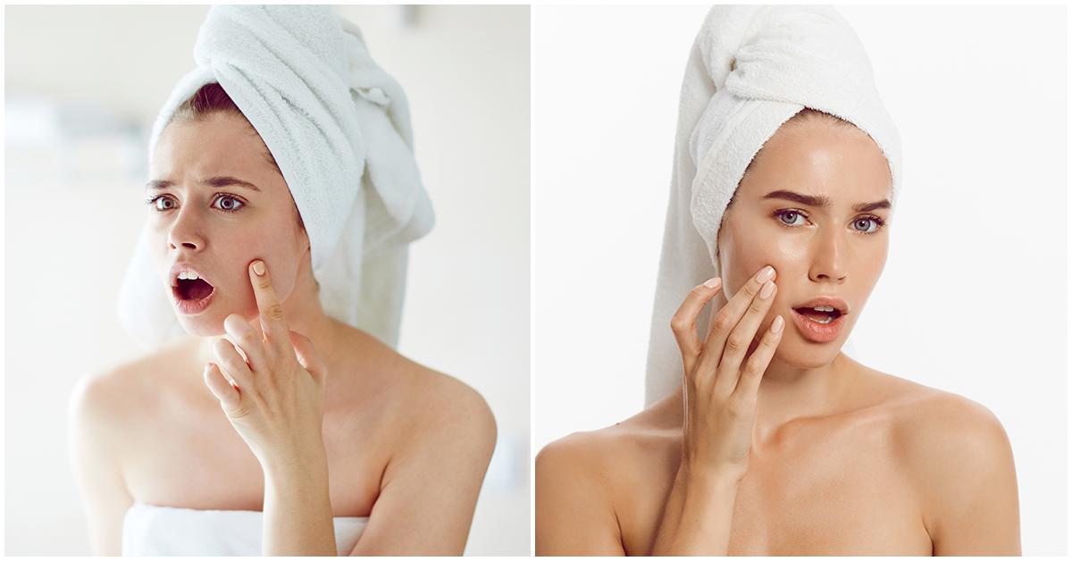 Si te salen granitos aún cuando no te maquillas, tal vez sea por esto
