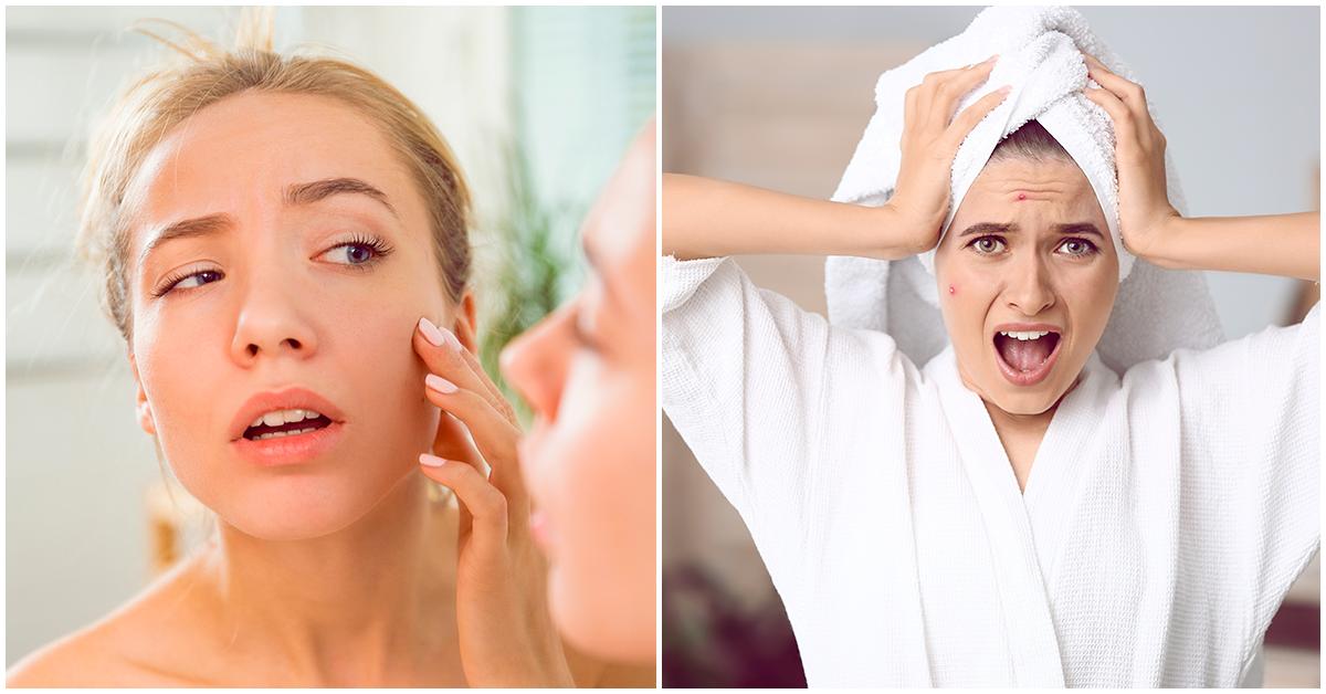 No permitas que el estrés te domine, puede tener graves consecuencias en tu piel