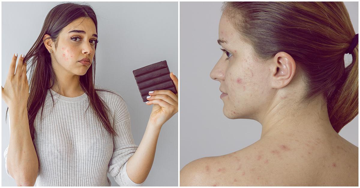 Consejitos para cuidar tu piel si es grasa