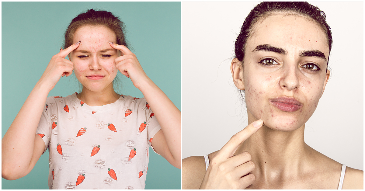 Cómo eliminar los puntos negros de tu piel ¡YA!