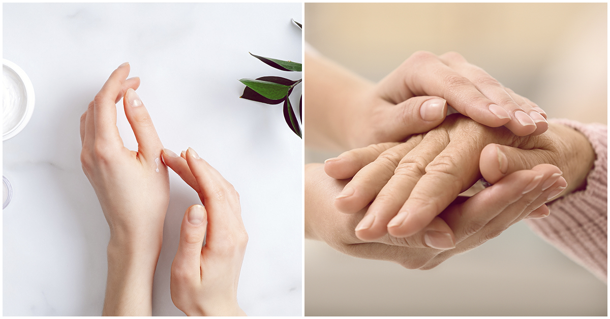 Remedios sencillos para el sudor en las manos