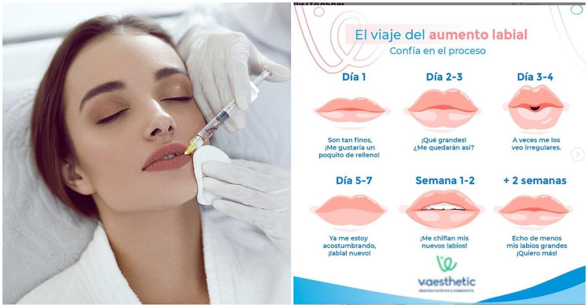 Lo que un tratamiento medico estético le hace a tus labios